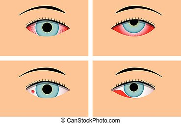 Conjunctivitis and Red Bloodshot Eyes, vector design