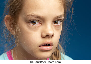 Conjunctivitis in front of a ten year old girl