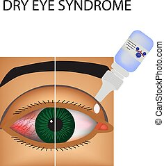 Conjunctivitis. Redness and inflammation of the eye. Vessels. Eye drops. Treatment. Infographics. Vector illustration on isolated background