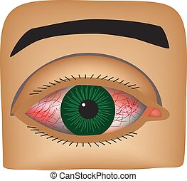 Conjunctivitis. Redness and inflammation of the eye. Vessels in the eye. Infographics. Vector illustration on isolated background