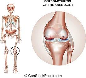 conjunto, artrite, joelho