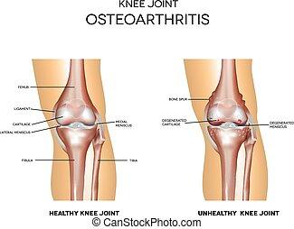 conjunto, osteoartrite, normal