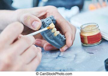 construcción, dental, work., prótesis, técnico, dientes, ...