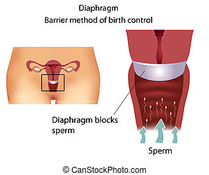contraceptive method- Diaphragm - Barrier contraceptive...