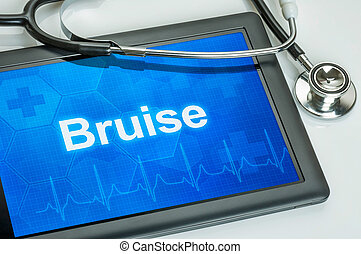contusion, diagnostic, tablette, exposer