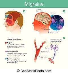 cooccur, 頭, 血管, 流れ, brain., 側, 圧力をかけて従わせられた, illustration., 痛み, 減らしなさい, 頭痛, 1(人・つ), であつて下さい, migraine.