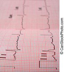 coração, análise, esquema