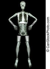 coração, coxa, antebraço, costas, pulmão, human, pelve, arme akimbo, ), peito, dedo, tornozelo, :, quadril, cabeça, (x-ray, perna, corporal, abdome, mão, pulso, pé, joelho, tórax, ombro, pescoço, cranio, espinha, vértebra, levantar, cotovelo, inteiro, osso