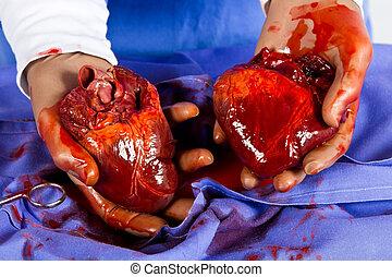 corazón, operación, trasplante