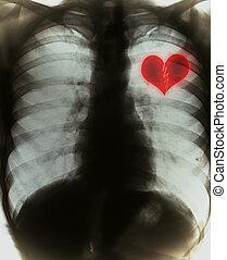 corazón roto, en, negro, radiografía, película
