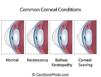 corneal, condições, eps8, comum
