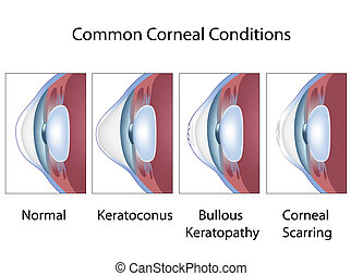 corneal, förhållande, eps8, gemensam