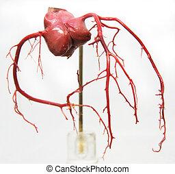 Coronary arteries 1 - A cast of coronary arteries used for...