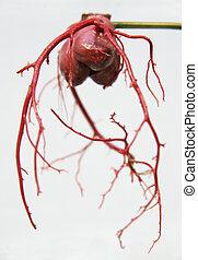 Coronary arteries 2 - A cast of coronary arteries used for...