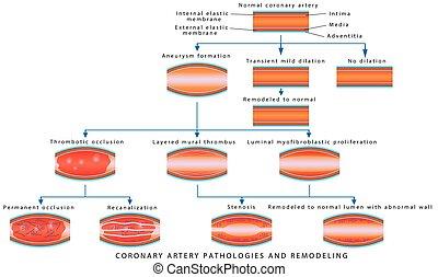 Coronary Artery Pathology. Arterial Remodeling. Medical ...