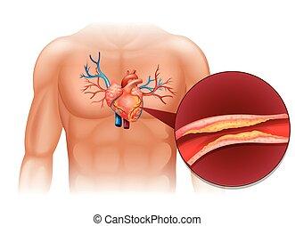 corps, coeur, cholesteral, humain