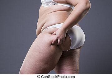 corps, femme, excès poids, graisse, jambes, femme, obésité