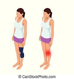 corps, isométrique, ou, douleur, entorses, après, illustration, anatomique, vecteur, joint., genou, orthopédie, medicine., rééducation, man., trauma.