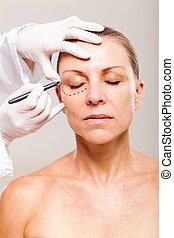 correção, mulher, linhas, plástico, sênior, rosto, cirurgia, antes de