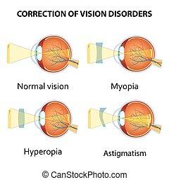 correção, olho, visão, desordens, lens.