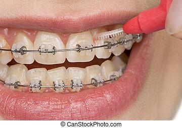oral hygiene - correct oral hygiene of teeth with brace