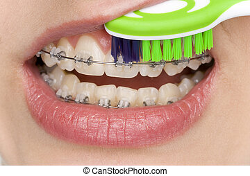 oral hygiene - correct oral hygiene of teeth with brace