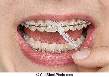 correct oral hygiene of teeth with brace
