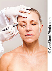 correction lines on senior woman's face before plastic ...