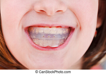 correction of occlusion by orthodontic trainer - correction...