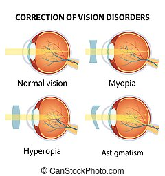 Correction of various eye vision disorder.