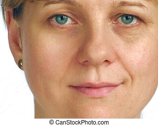Correction of wrinkles on half of f