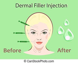 Cosmetic surgery vector illustration. Filler injection....