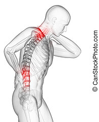 costas, doloroso, pescoço