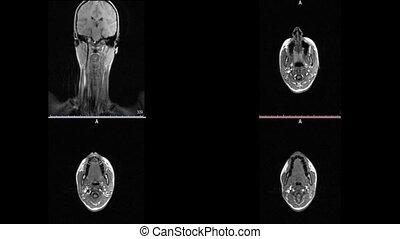 cou, magnétique, sclérose, taches, cerveau, imaging,...