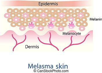 couche, melasma, vector., peau