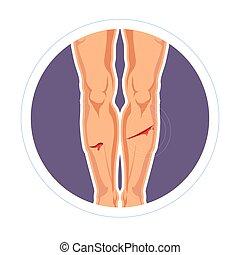 coupure, douleur, saignement, égratignure, peau, blessure, jambes, ou