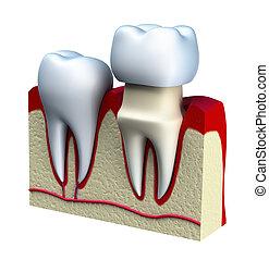 couronne, dentaire, installation, processus