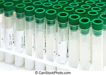 Covid-19 outbreak blood test. Close up view of empty test tubes for blood samples of Coronavirus patients, on a rack.