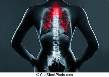 covid-19, pneumonia, tuberculosis., vírus, film, tüdő, ...