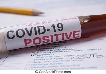 Covid-19 test tube - Covid-19 coronavirus lab test with ...