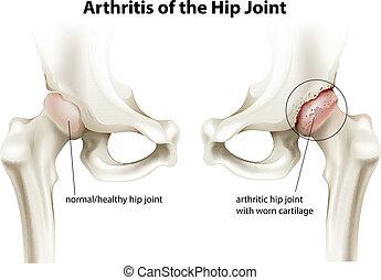 coyuntura cadera, artritis