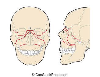 cráneo, fortaleza, le, fracturas