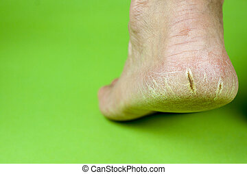 Cracked heel on green background