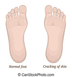 Cracks in the heel - Illustration of healthy feet and feet ...