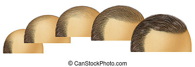 crescita, capelli, testa, calvo