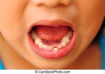 criança, solto, dente
