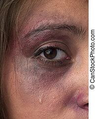 cropped image of a woman with bruise on her face - Cropped...