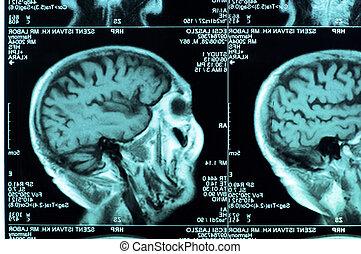 ct esquadrinha, de, a, cérebro humano, azulejo