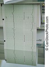 CTG Cardiotocography printout - Cardiotocography (CTG)...