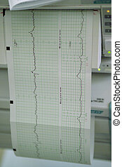 ctg, cardiotocography, printout